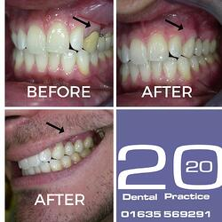 Cosmetic Dentistry Newbury.jpg