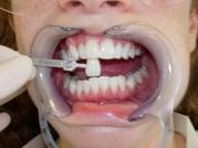 Teethwhiteningnewbury.jpg