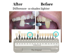 Teeth_Whitening_14_June_15