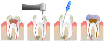 Newbury Dental Practice Root Canal Treatment